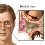 sinüzit tedavisi