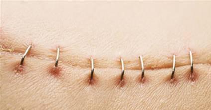 Ameliyat-sonrası-yara-veya-dikiş-bakımı