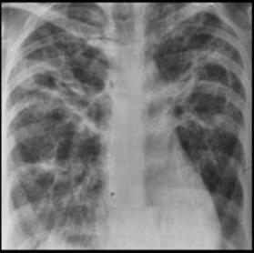 Akciğerde Subplevral Nodül Nedir?