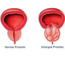 prostat,