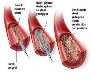 Böbreğe stent takılması