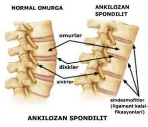 Ankilozan spondilit hastalığı