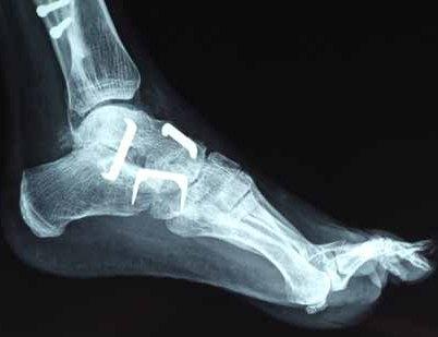 Ayak parmağı kemik çatlağı tedavisi