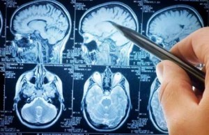 Beyinde Hiperintens lezyon