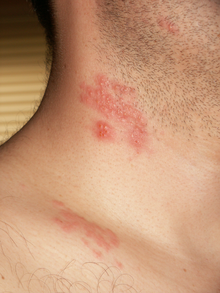 kaz derisi hastalığı tedavisi