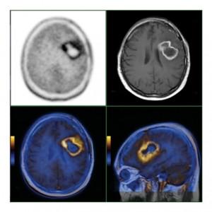PET CT Nasıl Bir İşlemdir?