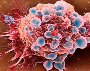 Kanser Vakalarında PET CT Nasıl Kullanılır