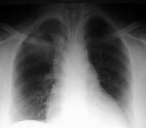 verem-tuberkuloz