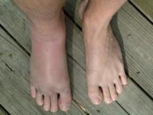 ayak-kirigi
