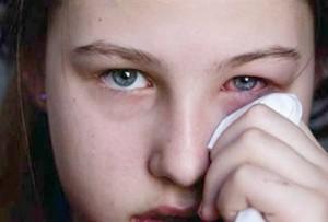 Göz Kanlanması Doğal Tedavi Yöntemleri