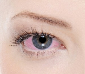 Göz kanlanması nedenleri