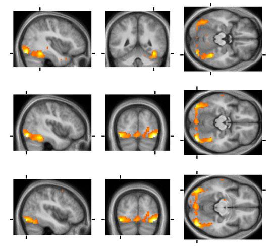 Beyin mr fiyatları 2014