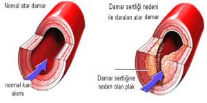Damar sertliği tedavisi
