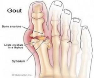 Gut hastalığı bedir, belirtileri nelerdir?