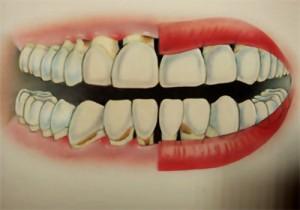 Diş İltihaplanması Bitkisel Çözüm