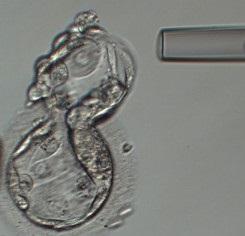 Kromozom testi nedir?