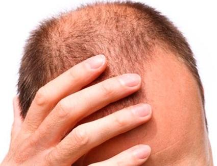 Saç dökülmesine iyi gelen bitkiler