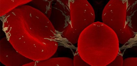 Trombosit Düşüklüğü nedir