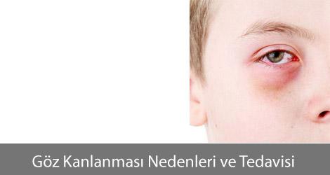 Göz Kanlanması Nedenleri ve Tedavisi