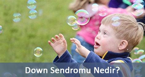 Down Sendromu Nedir?