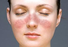 Lupus Hastalığı Belirtileri