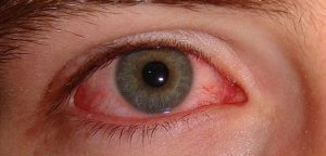 Göz Kanlanması Nedenleri ve Doğal Tedavi Yolları