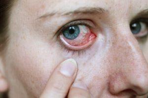 Göz Önüne Gelen Siyah ve Beyaz Lekeler Nedir?