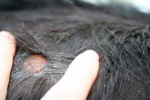 Saç Mantarı Başlangıcı var Nelere Dikkat Etmeliyim