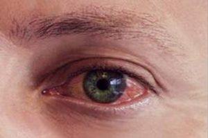 Gözlerimde Kızarıklık Oldu Nasıl Geçirebilirim?