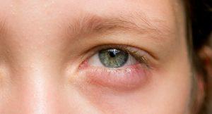 Gözün Kaşınması Neden Olur?