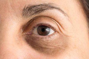Göz Altı Morluğu Nasıl Geçer?