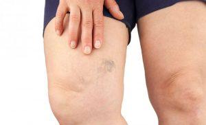 Bacaklarda Damarların Çok Belirgin Olması