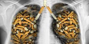 Sigara İçtikten Sonra Tüm Enerjim Tükeniyor