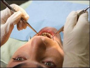 Diş çekiminde kullanılan morfinin yan etkileri