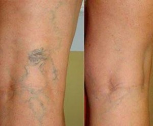 Bacaklarda kaşıntı ve morluk neden olur?