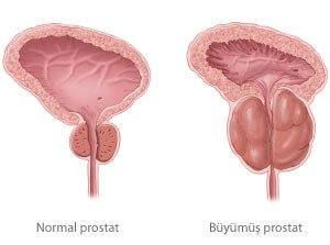 Prostatla ilgili bilinmesi gereken gerçekler
