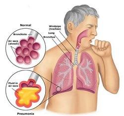 Akciğer-Enfeksiyonu