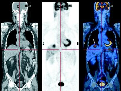 PET CT Nerelerde Kullanılır