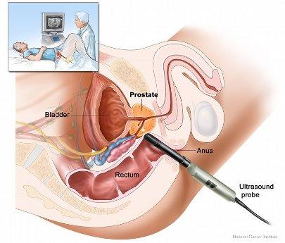 Prostat Check-Up Hangi Testleri Kapsar