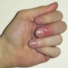 parmakta-dolama-nedenleri