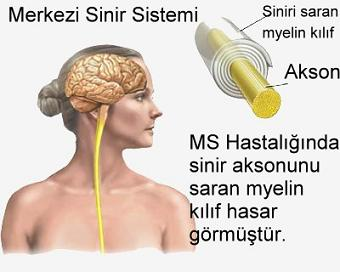 ms-hastaligi