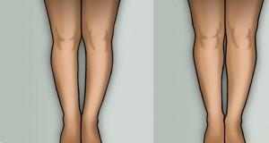 Çarpık bacaklar estetikle düzelir mi?