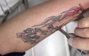 Kalıcı dövmeleri silen krem