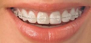 Diş teli tedavisini SGK karşılıyor mu?