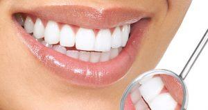 Dişlerimin Alt Kısmında Sararma Var Ne Yapmalıyım?