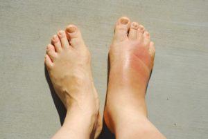 Ayakların Şişmesi ( Ödem ) Nasıl Önlenir?