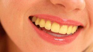 Diş Neden Sararır, Nasıl Beyazlar?