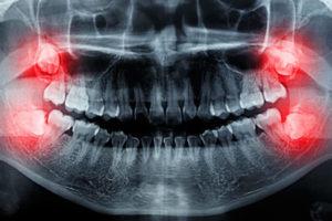 Yirmilik Diş Çekilmeli mi?