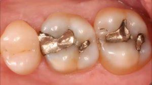 Dolgu Yapılan Diş Çürür mü?