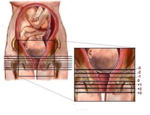 Bebeğin Doğum Kanalına İnmesi